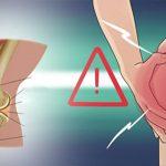 6 מאכלים שמקלים על כאב בברך
