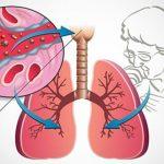 6 דרכים לקדם את הצמיחה של חיידקים בריאים במעיים