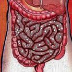 6 דרכים לקידום צמיחת החיידקים הבריאים במעיים שלכם