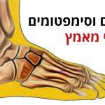 סימנים וסימפטומים לשברי מאמץ