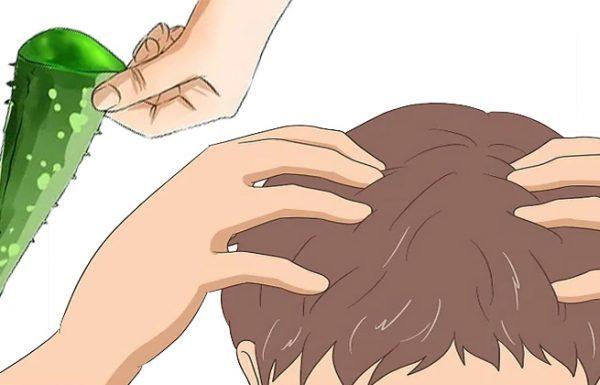 האם  ג'ל אלוורה מועיל לצמיחת השיער ?