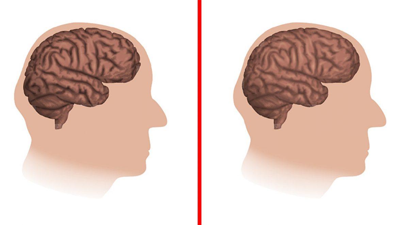 חמשת הדברים שגורמים למוח שלכם להזדקן מהר יותר, על פי המדע
