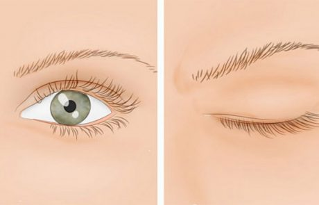 9 דרכים קלות כדי להגן על העיניים מפני נזק יומיומי