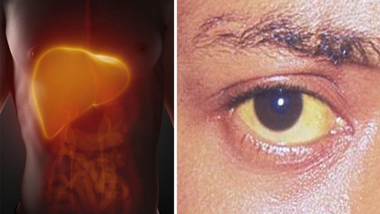 6 סימנים מוקדמים לנזק בכבד שאנשים מתעלמים מהם -%D7%91%D7%9B%D7%91%D7%93-32ah0a927mdqpz7bralwxs