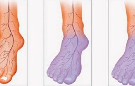 זרימת הדם לקויה, והרגליים והידיים קרות? הנה מה שאתם יכולים לעשות כדי לפתור את הבעיה הזו!