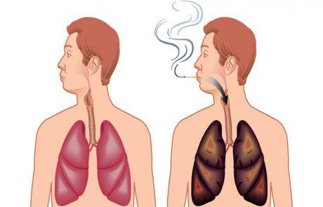 5 דרכים לניקוי והחייאת הריאות מעישון !