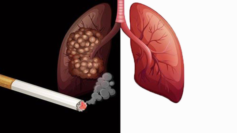 10 המחלות הקטלניות הנגרמות עקב העישון
