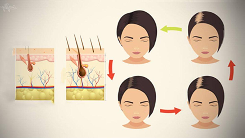 באמצעות 4 מזונות אלו שכולנו מכירים ניתן להילחם ובדרך טבעית לחלוטין בנשירת שיער!