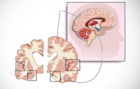 אם תעשו את 8 הדברים האלה, תפחיתו את הסיכון לחלות באלצהיימר!