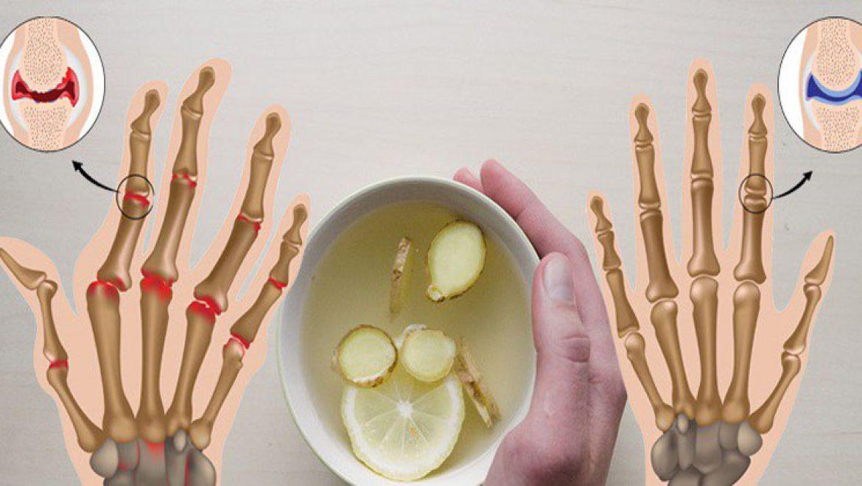 חוקרים מצאו כי 4 כוסות של תה ג'ינג'ר מקלות על כאבי מפרקים. כך תעשו את זה