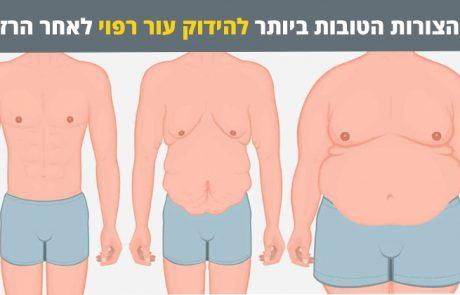11 הצורות הטובות ביותר להידוק עור רפוי לאחר הרזייה