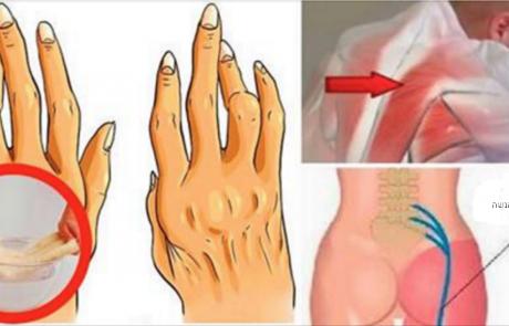 הטריק הפשוט הזה יעזור לכם להילחם בדלקת פרקים וכאבי גב יותר טוב מתרופות
