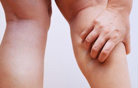 אם אתם סובלים מהתכווצויות רגליים לעתים קרובות, אלה הסיבות האפשריות לכך…