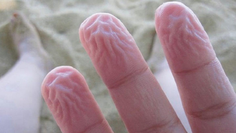 9 דברים מוזרים שקורים בגוף ואף פעם לא ידעתם שהם מנגנוני הגנה