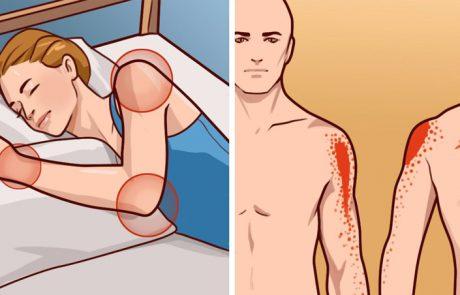 כך תטפלו בכאבי כתפיים בעזרת תרופות ביתיות ותרגילים