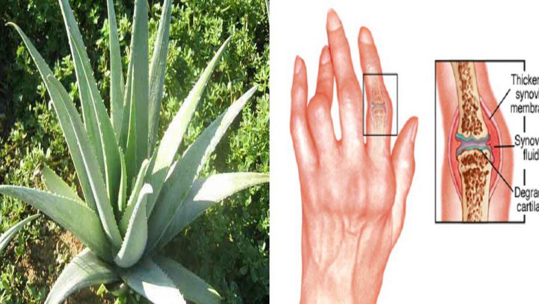 אתם יכולים להילחם ולרפא דלקות פרקים בעזרת צמחי מרפא טבעיים אלה