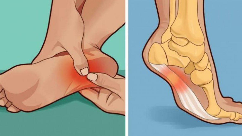 כל מה שאתם צריכים לדעת אם העקב כואב לכם בכל פעם שאתם עומדים!