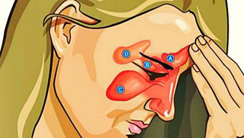 כיצד להקל על זיהום בסינוסים ולטפל באף סתום ב-15 שניות